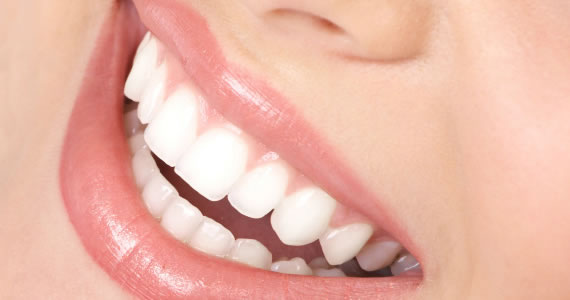 Good Reasons for Cleaning Teeth Every 6 Months