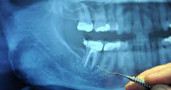 Endodontic Procedure